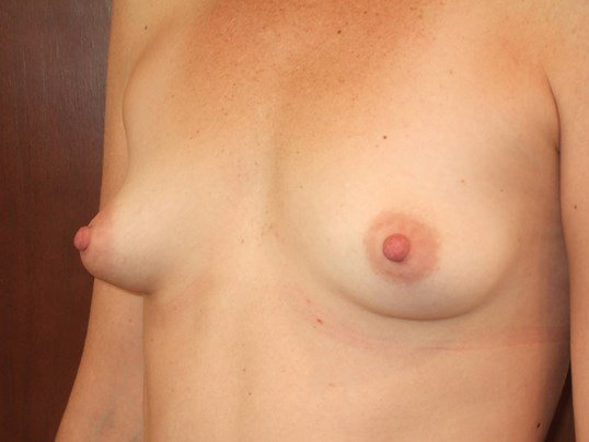 Left Three Quarter View Before Breast Augmentation