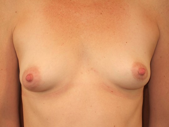 Breast Augmentation: Front Before Breast Augmentation