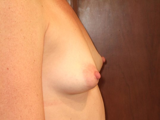 Right Side View Before Breast Augmentation
