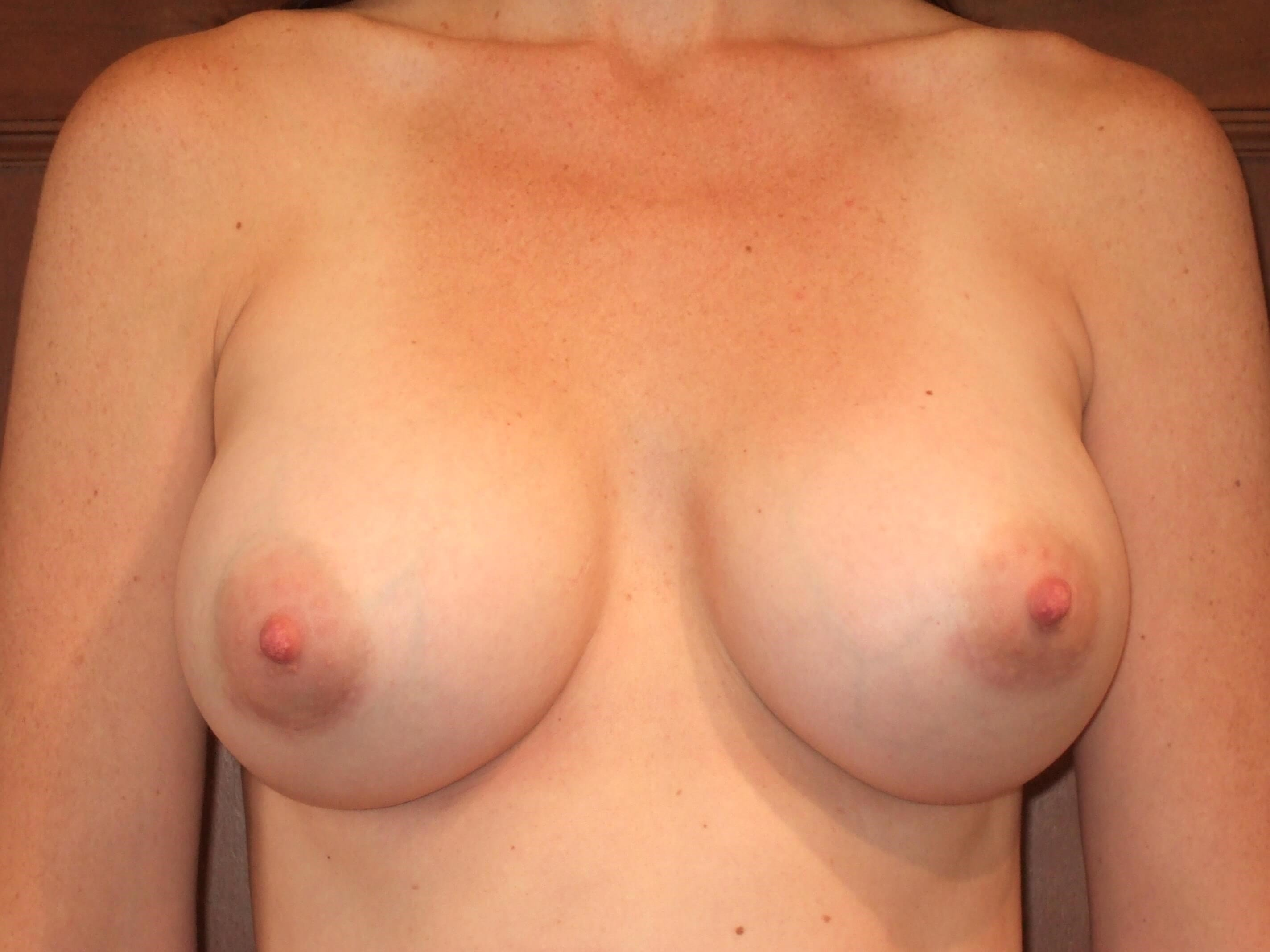 Breast Augmentation: Front After Breast Augmentation