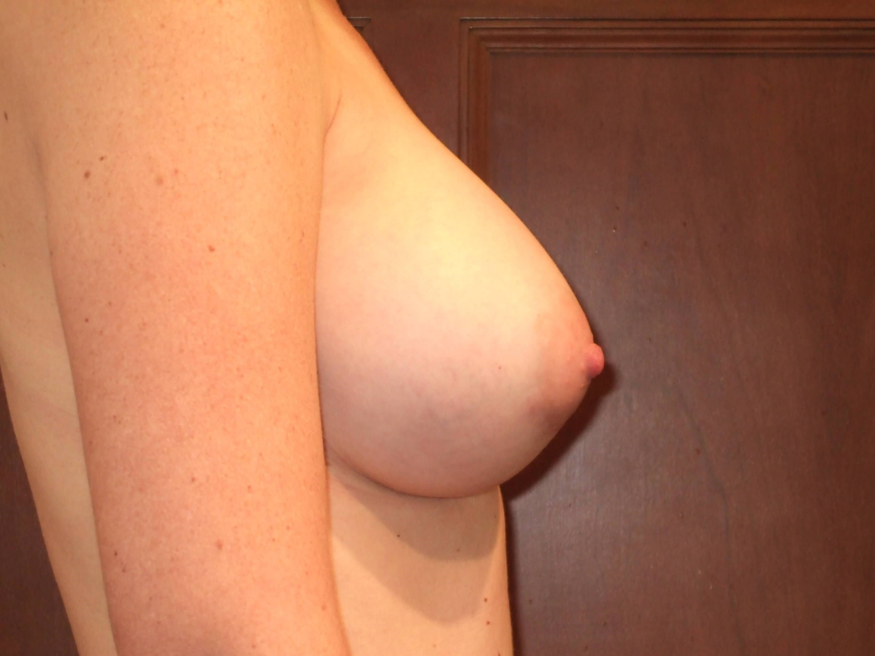 Right Side View After Breast Augmentation