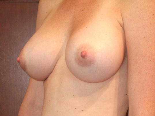 Left Three Quarter View After Breast Augmentation