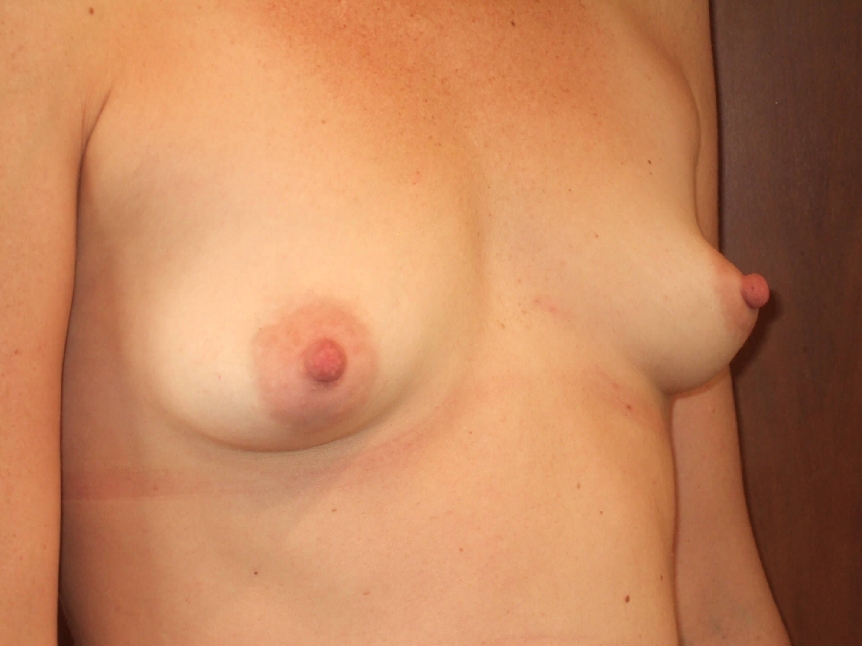 Right Three Quarter View Before Breast Augmentation