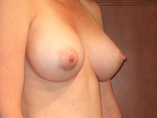 Right Three Quarter View After Breast Augmentation