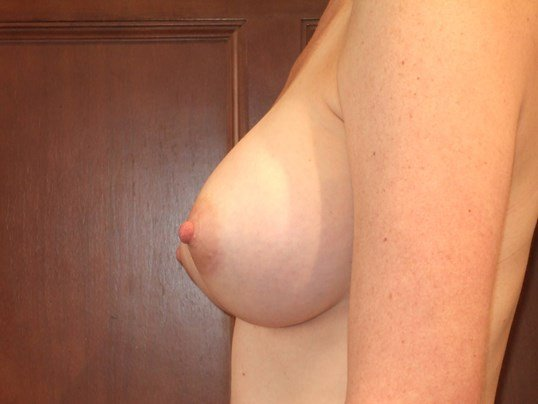 Left S After Breast Augmentation
