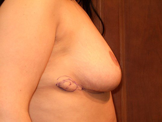 Right Side View Before Breast Revision