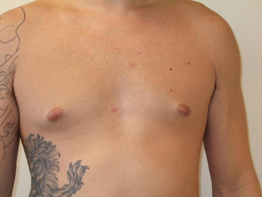 Gynecomastia: Front View Before Gynecomastia Surgery