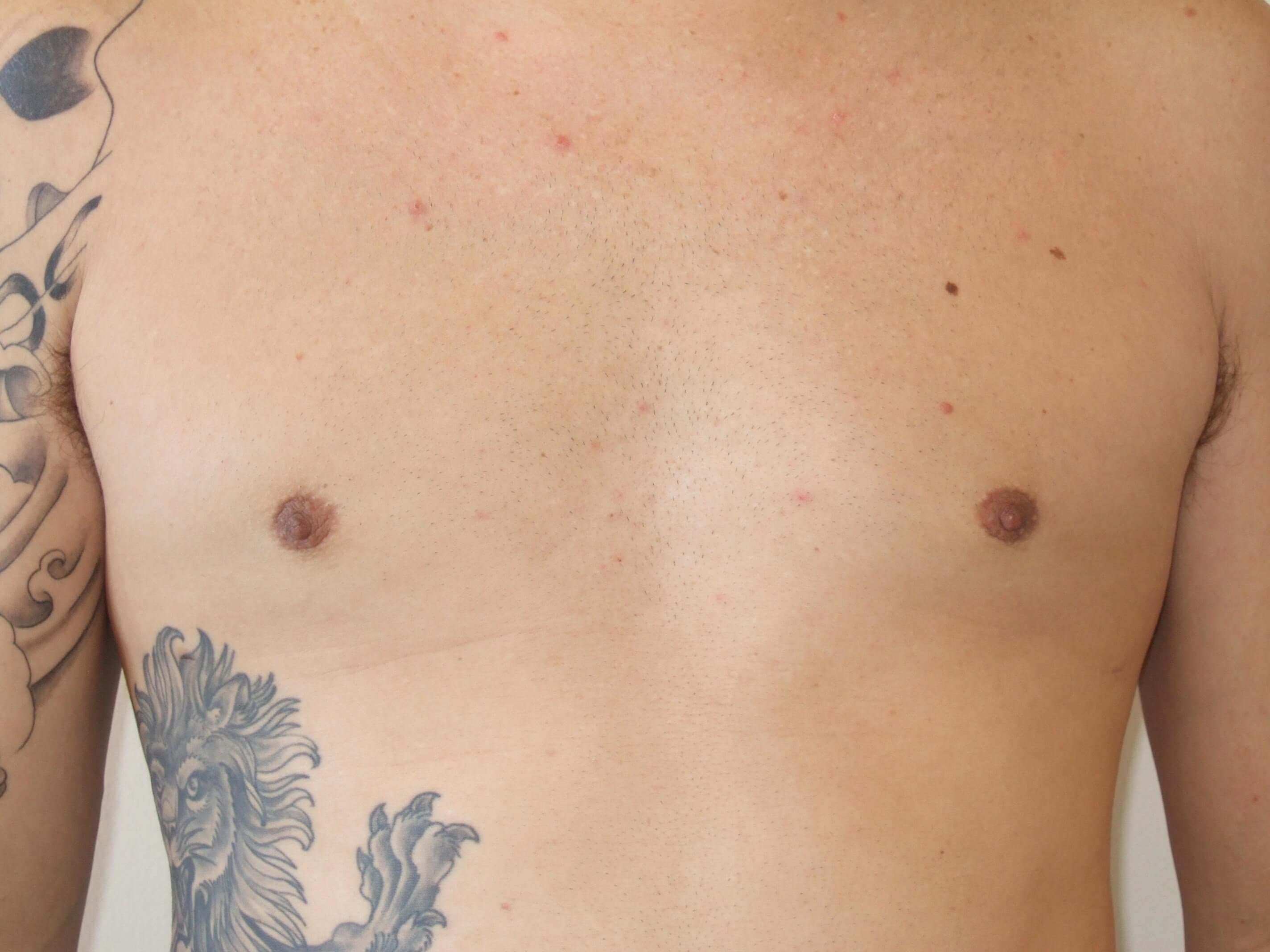 Gynecomastia: Front View After Gynecomastia Surgery
