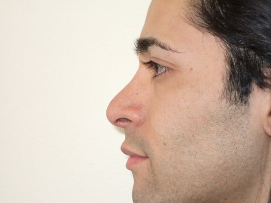 Left Side View After Rhinoplasty