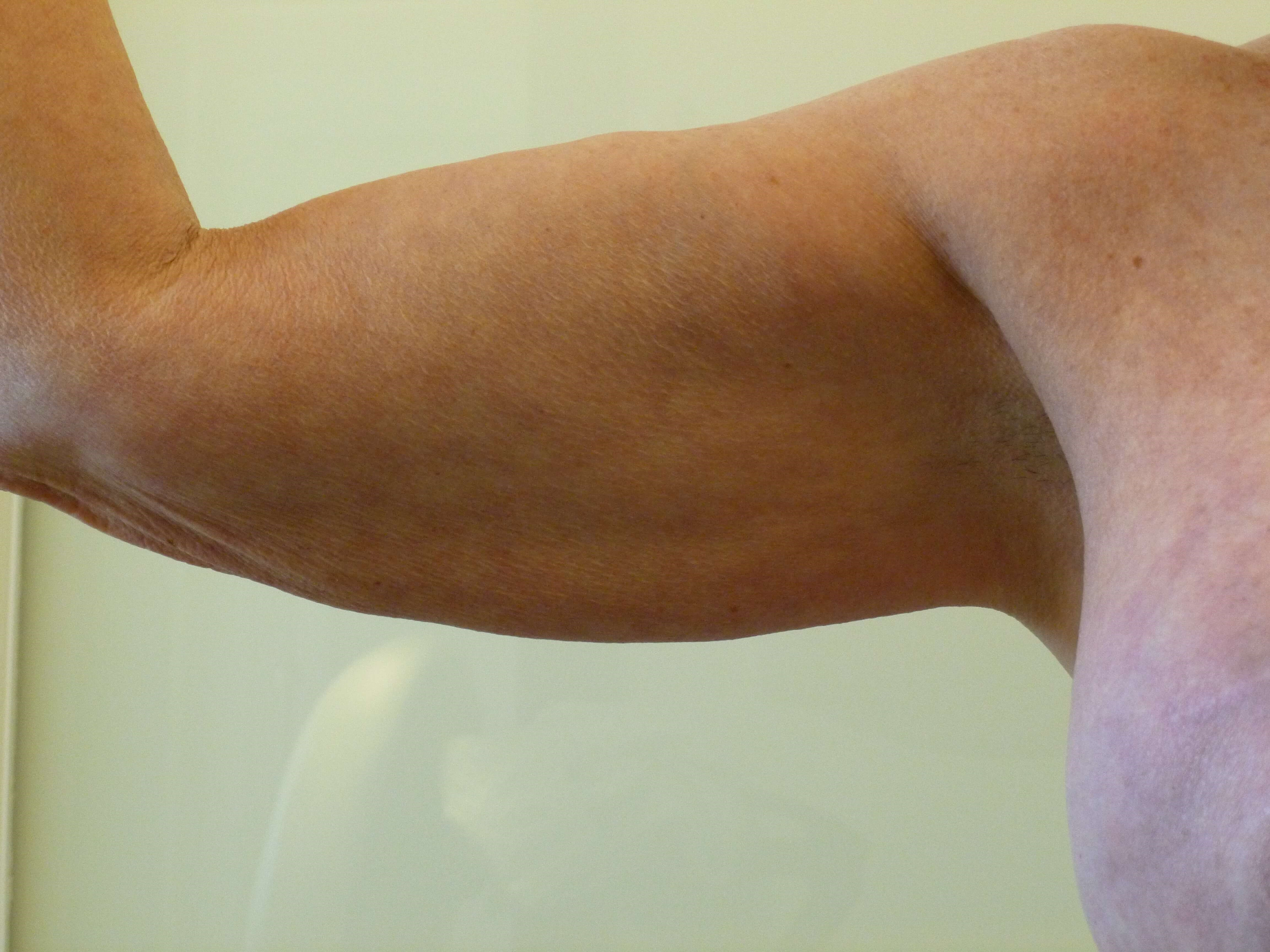 Inside of Right Upper Arm Before Lipo and ThermiTight®