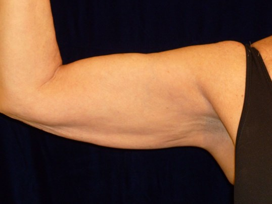 Inside of Right Upper Arm After Lipo and ThermiTight®
