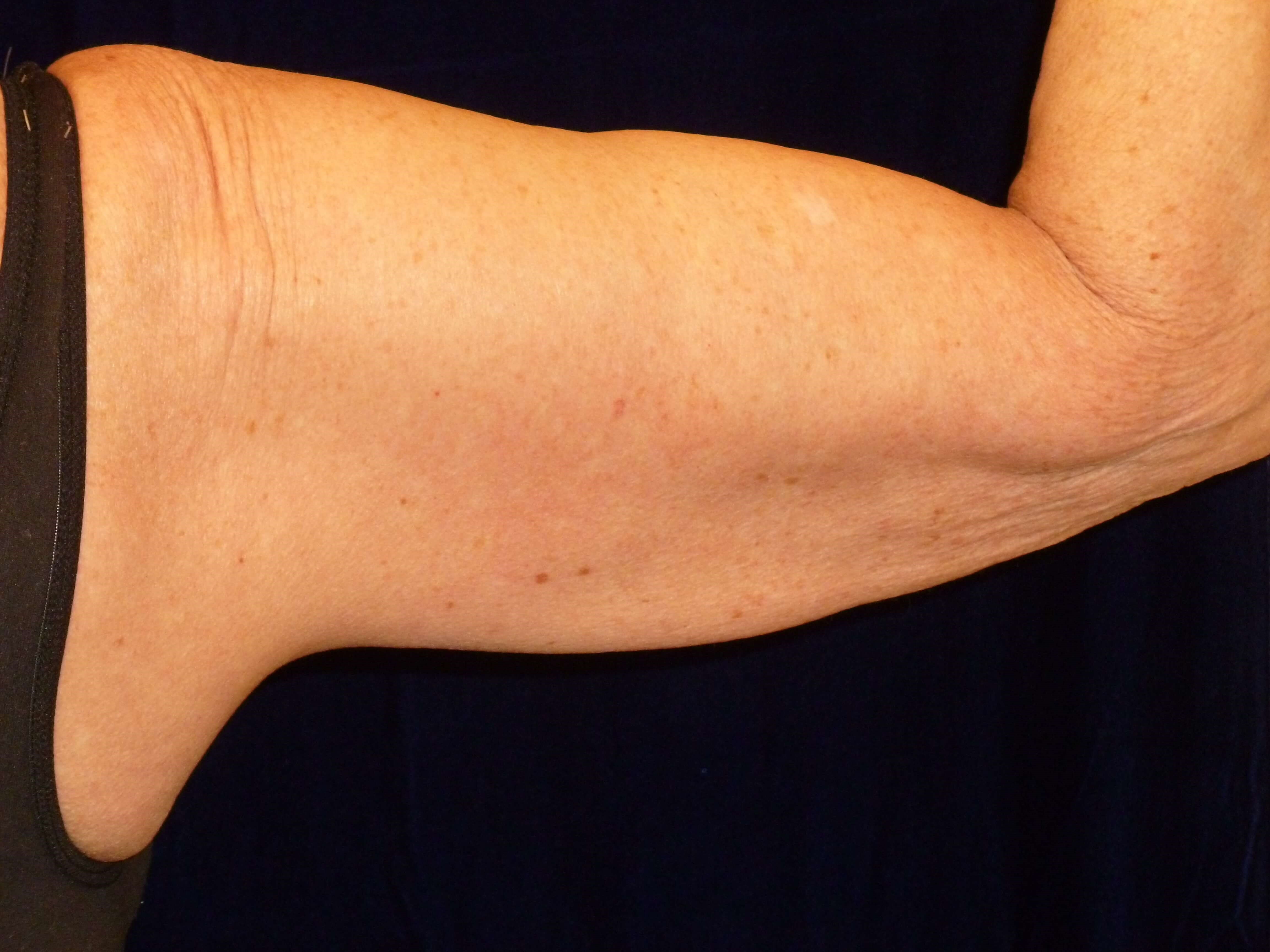 Back of Right Upper Arm After Lipo and ThermiTight®