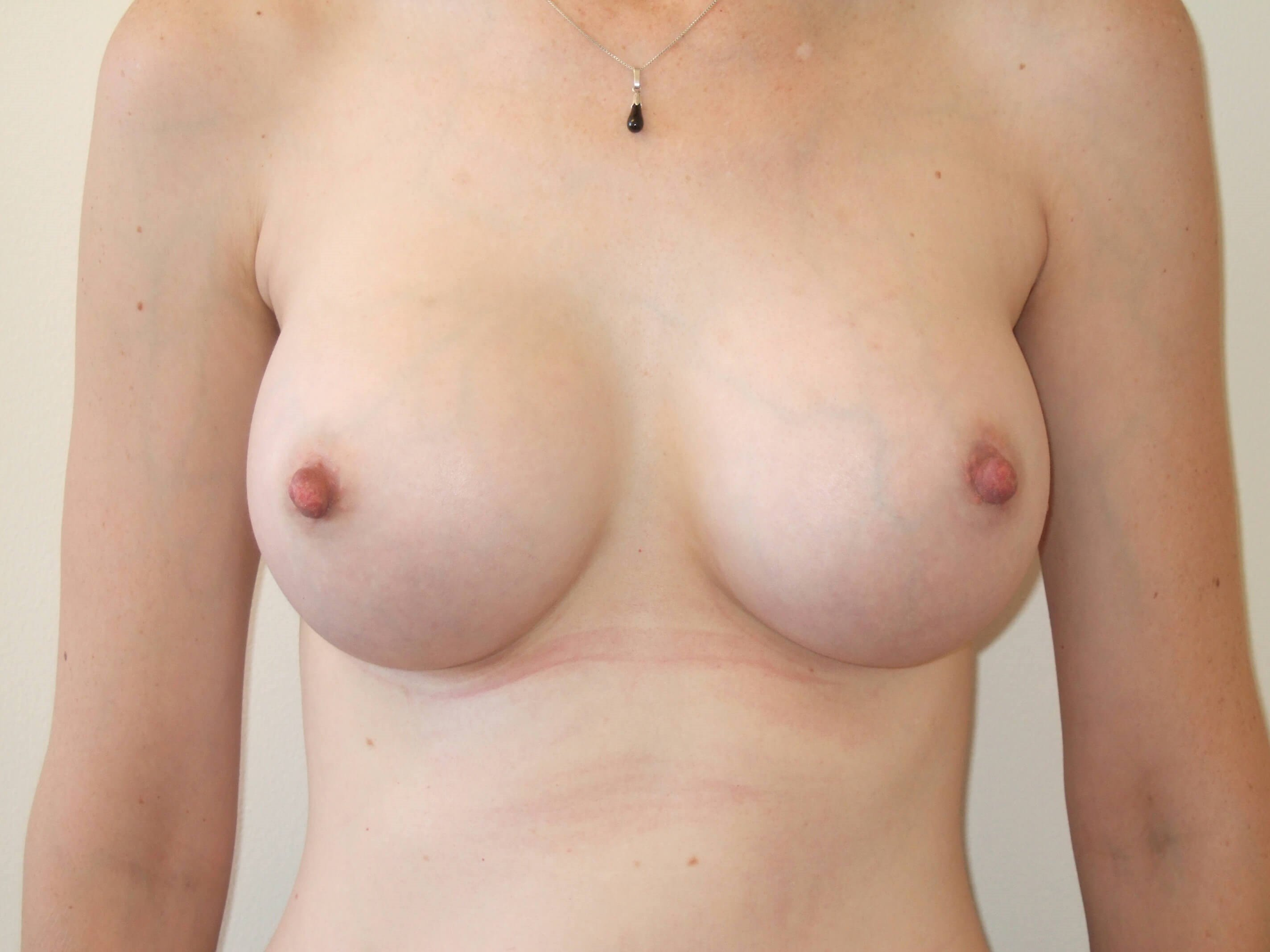 Front View After Breast Implants