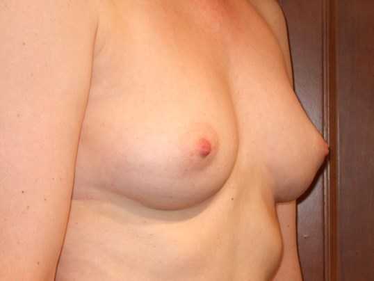 Right Three Quarter View Before Breast Implants