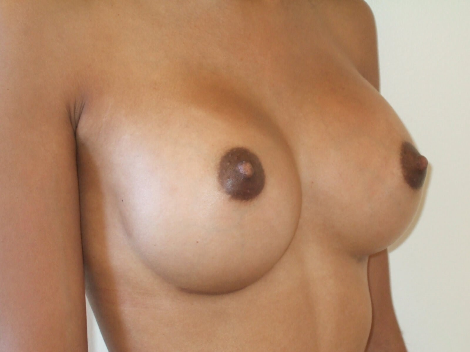 Right Three Quarter View After Breast Implants