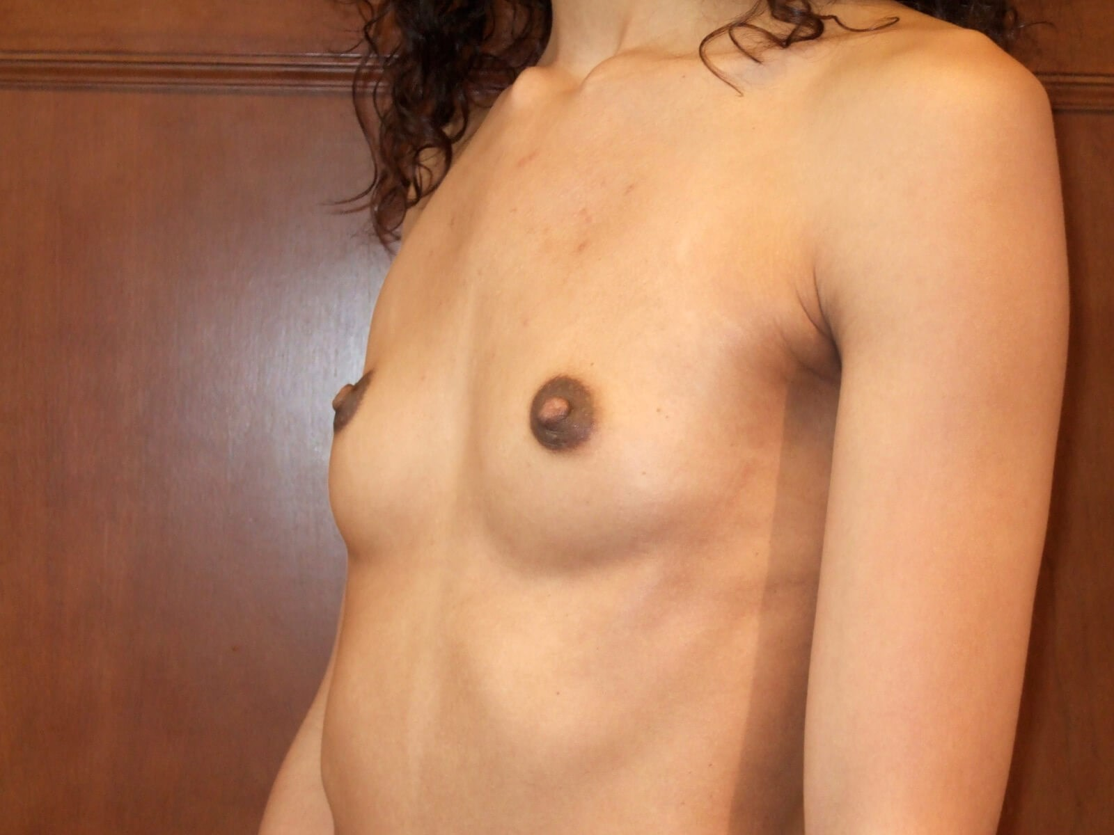Left Three Quarter View Before Breast Implants