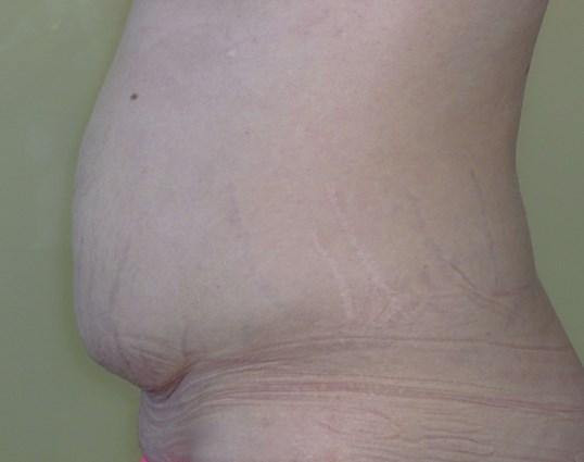 Full Tummy Tuck Side View Before