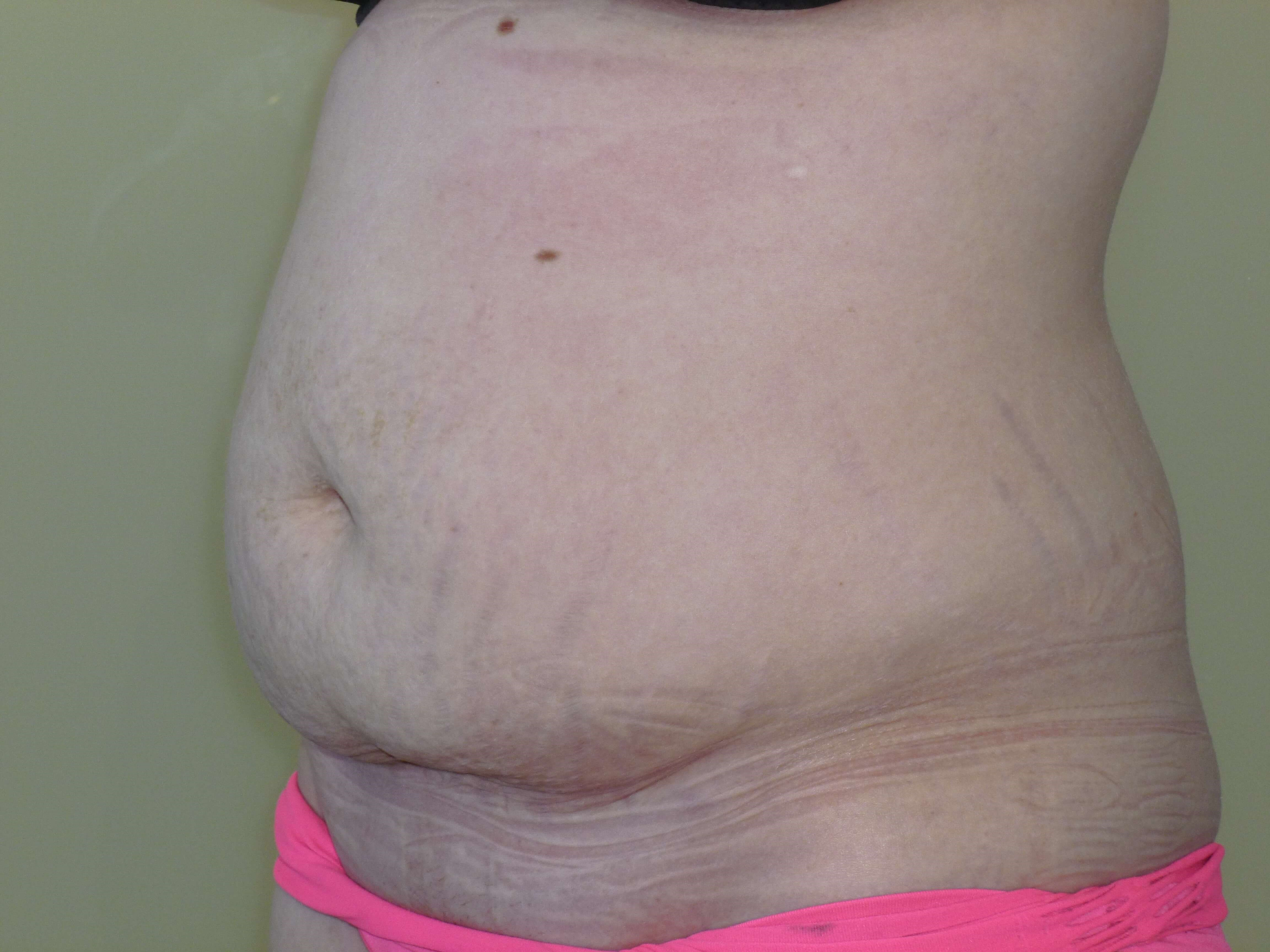 Full Tummy Tuck 3/4 View Before