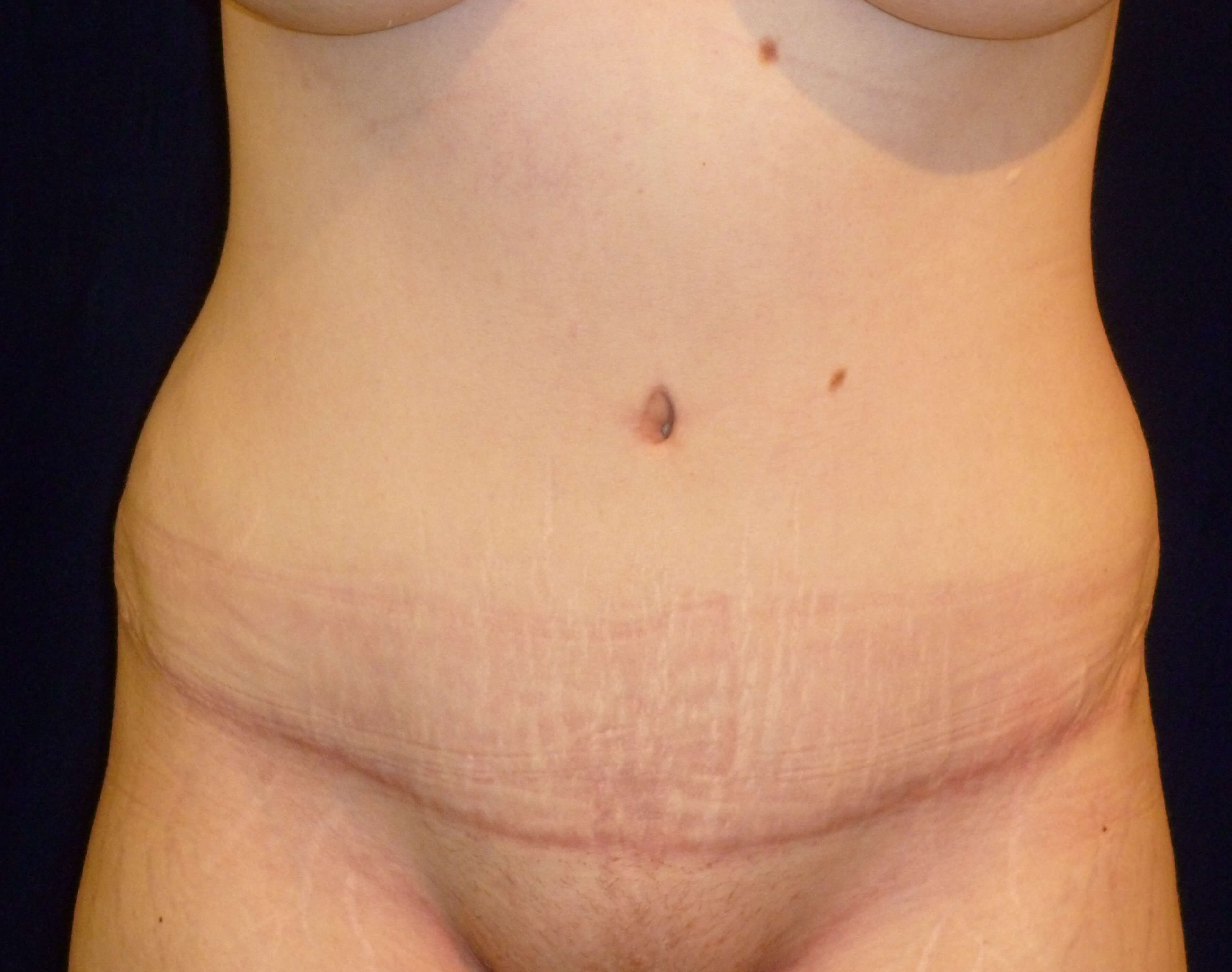 Full Tummy Tuck Front View After Tummy Tuck