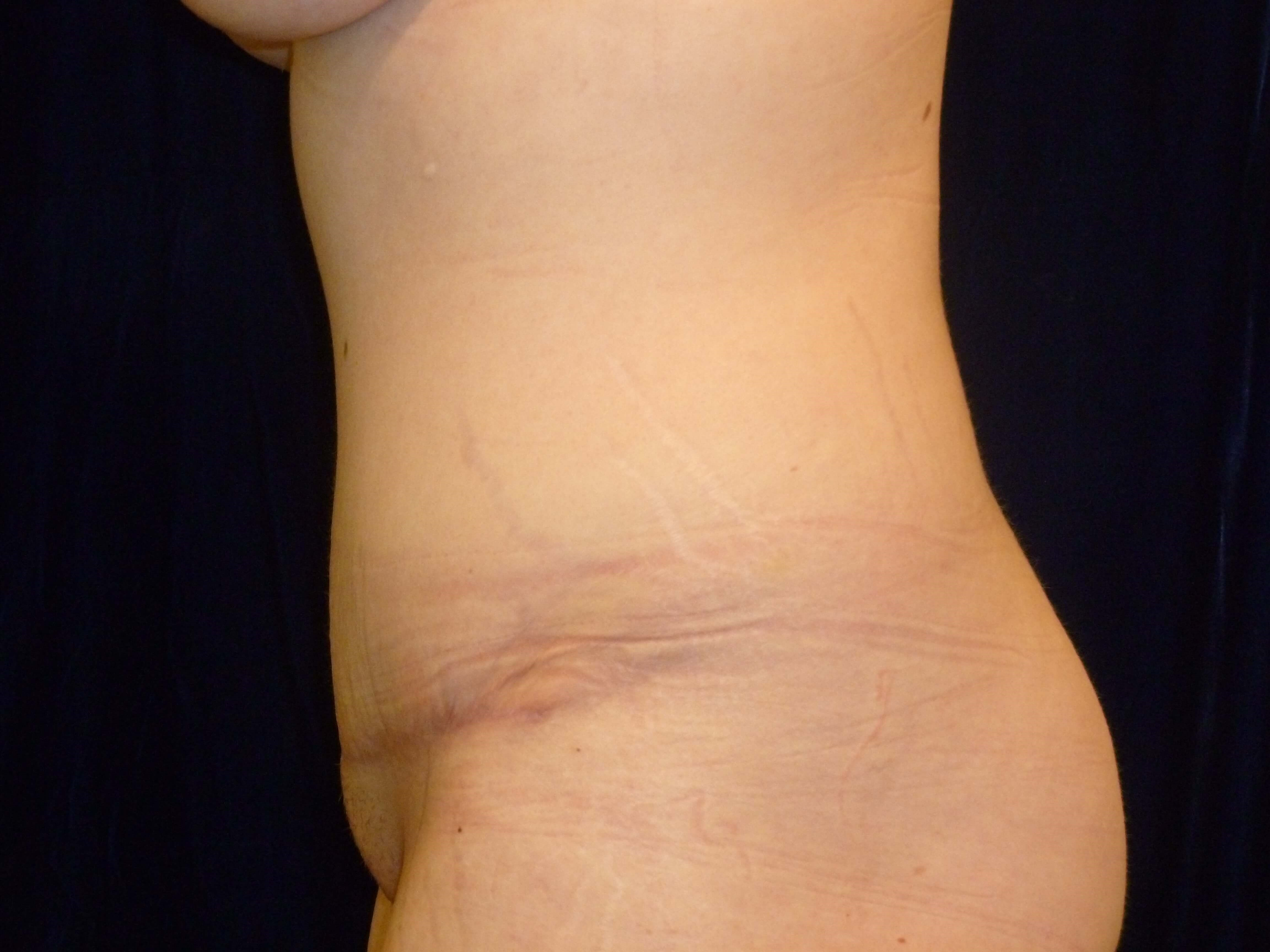 Full Tummy Tuck Side View After