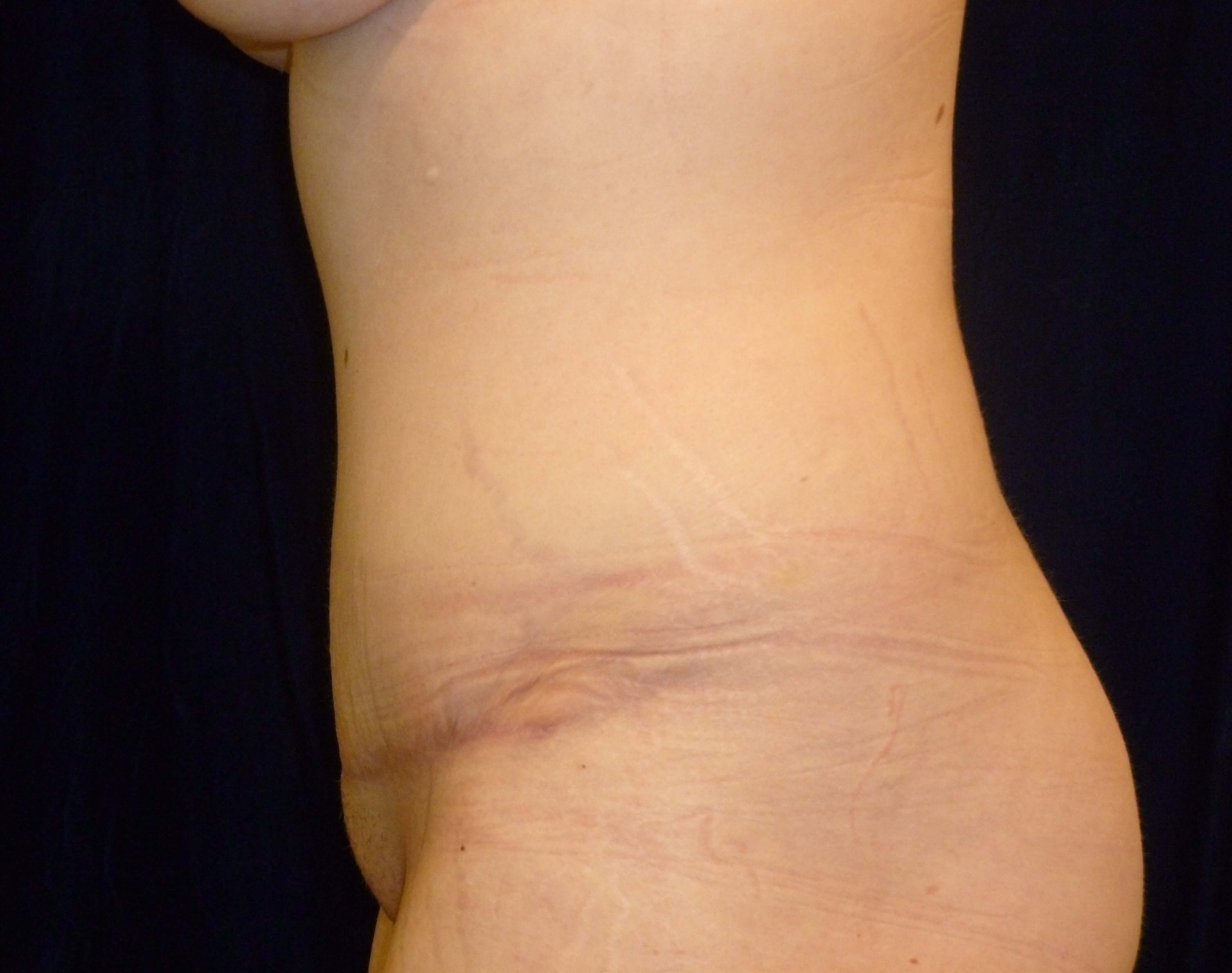 LEFT SIDE VIEW After Tummy Tuck