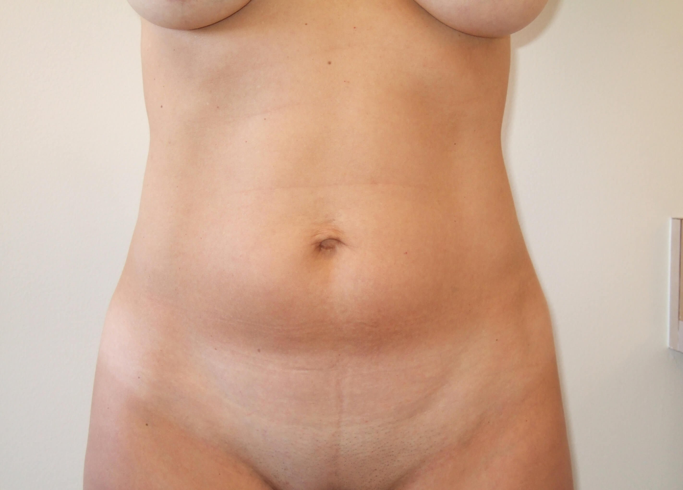 Liposuction & Mini Tummy Tuck Before