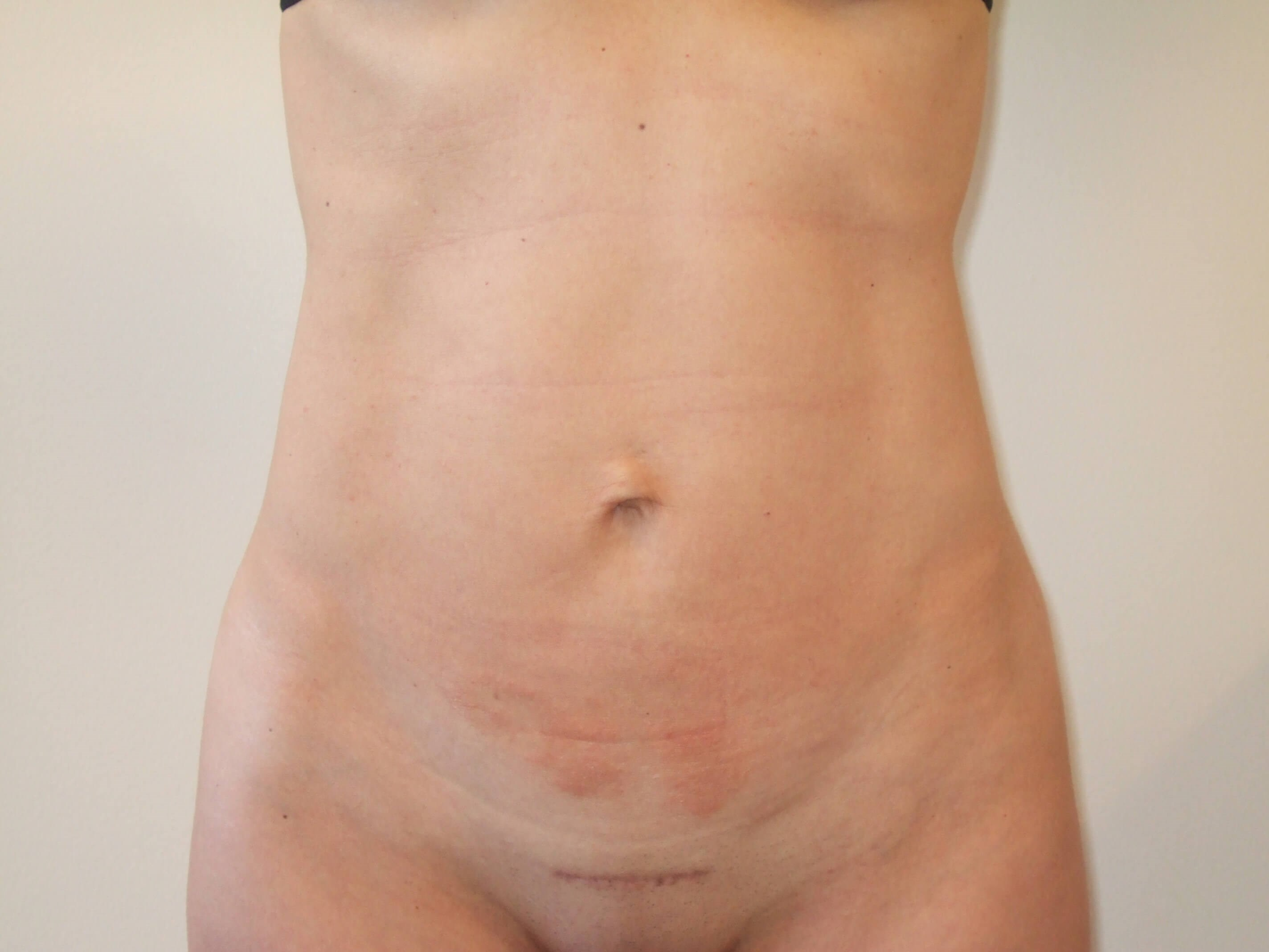 Liposuction & Mini Tummy Tuck After