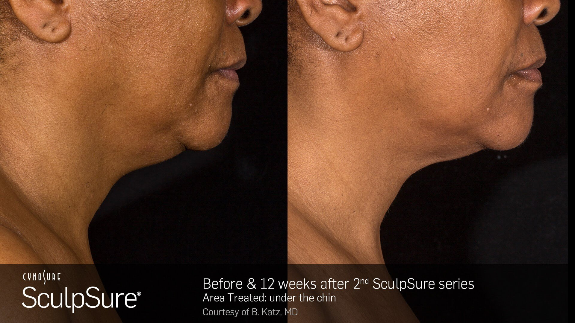 SculpSure Submental