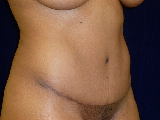 THREE QUARTER VIEW After Tummy Tuck