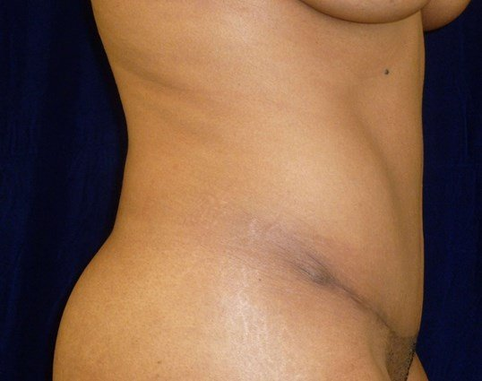 Full Tummy Tuck, Side View After Tummy Tuck