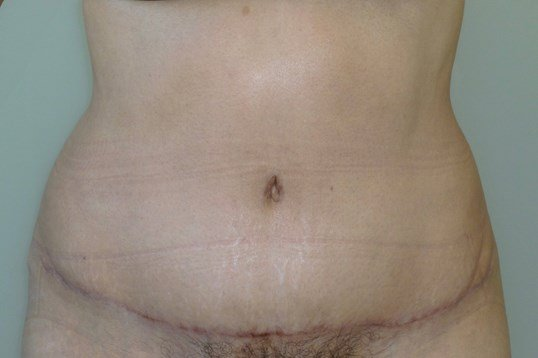 FULL TUMMY TUCK: FRONT VIEW After Tummy Tuck