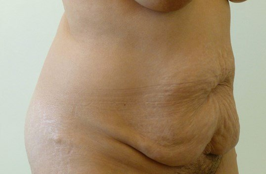 Right Three Quarter View Before Tummy Tuck
