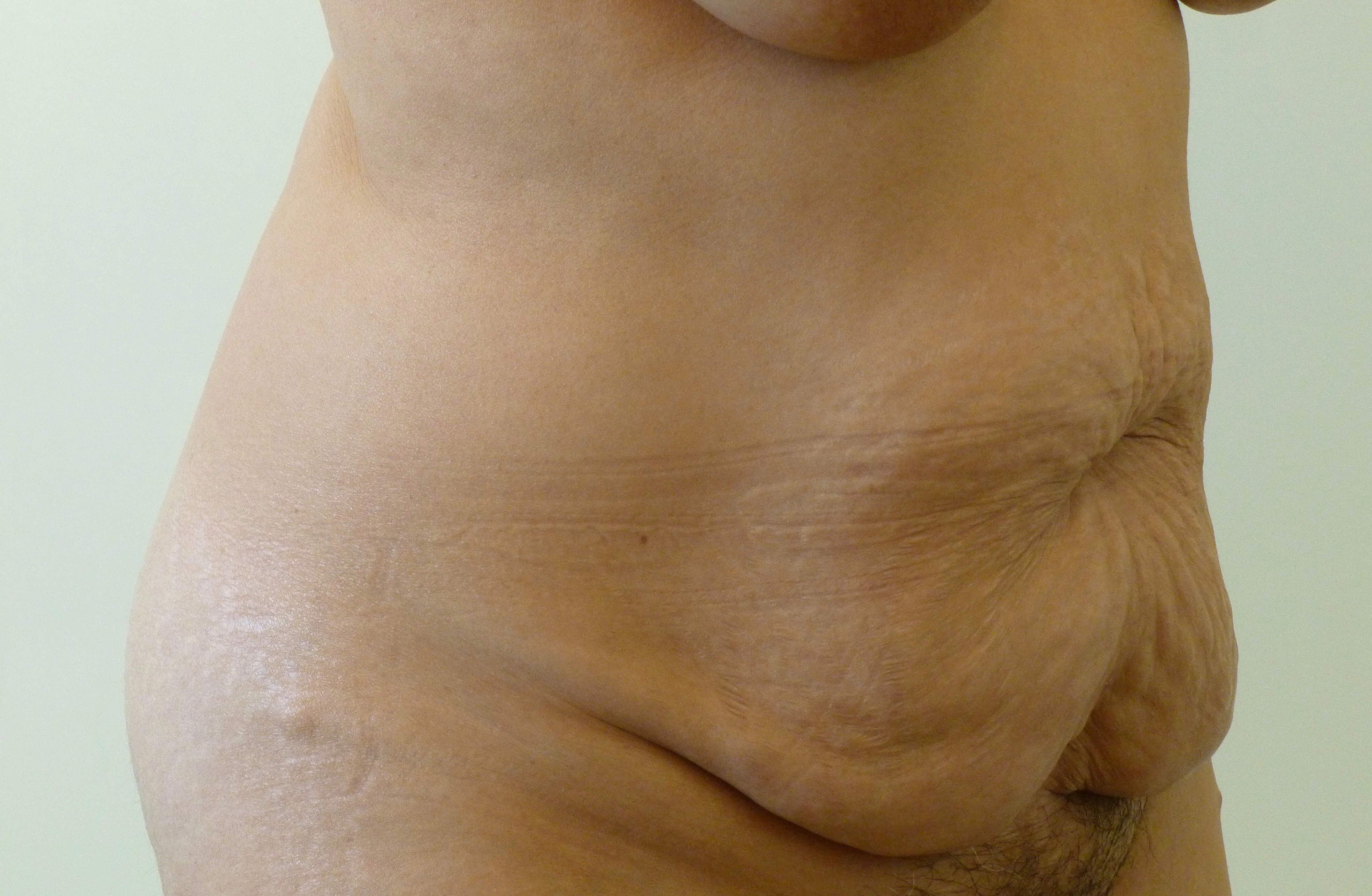 Full Tummy Tuck 3/4 View Left Before Tummy Tuck