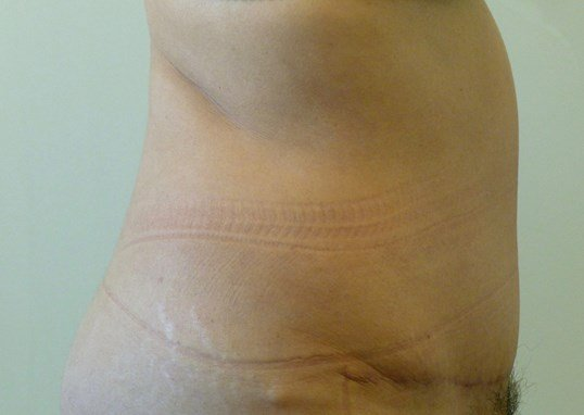 RIGHT SIDE VIEW After Tummy Tuck