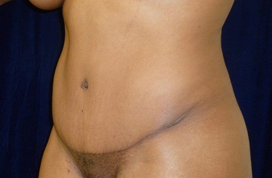 Left Three Quarter View After Tummy Tuck