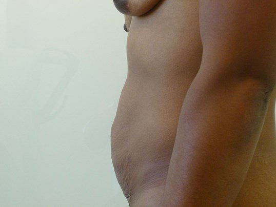 Full Tummy Tuck, Side View Before Tummy Tuck