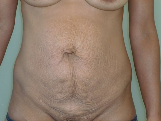 Tummy Tuck Results, Front View Before Tummy Tuck