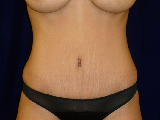 Tummy Tuck Results, Front View After Tummy Tuck