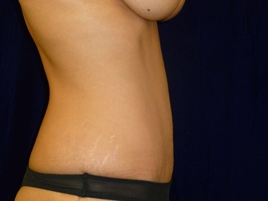 Tummy Tuck Results, Side View After Tummy Tuck