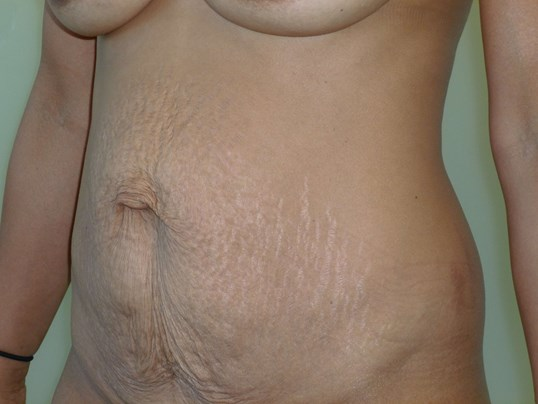 Tummy Tuck Results, 3/4 View Before Tummy Tuck