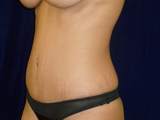 Tummy Tuck Results, 3/4 View After Tummy Tuck