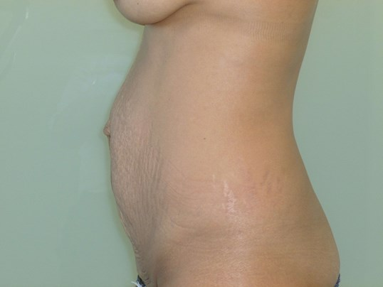 Tummy Tuck Results, Side View Before Tummy Tuck
