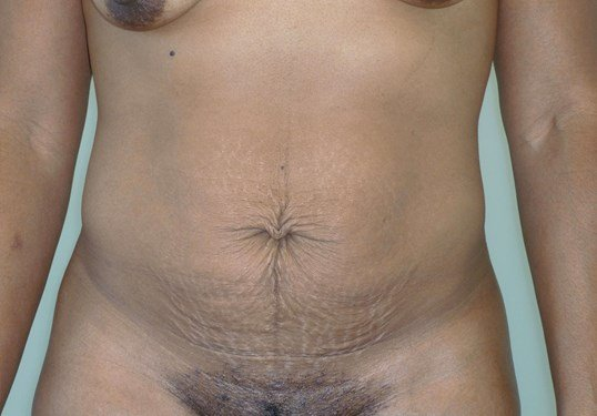 Full Tummy Tuck Result, Front Before Tummy Tuck