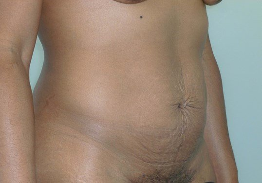 Full Tummy Tuck, 3/4 View Before Tummy Tuck