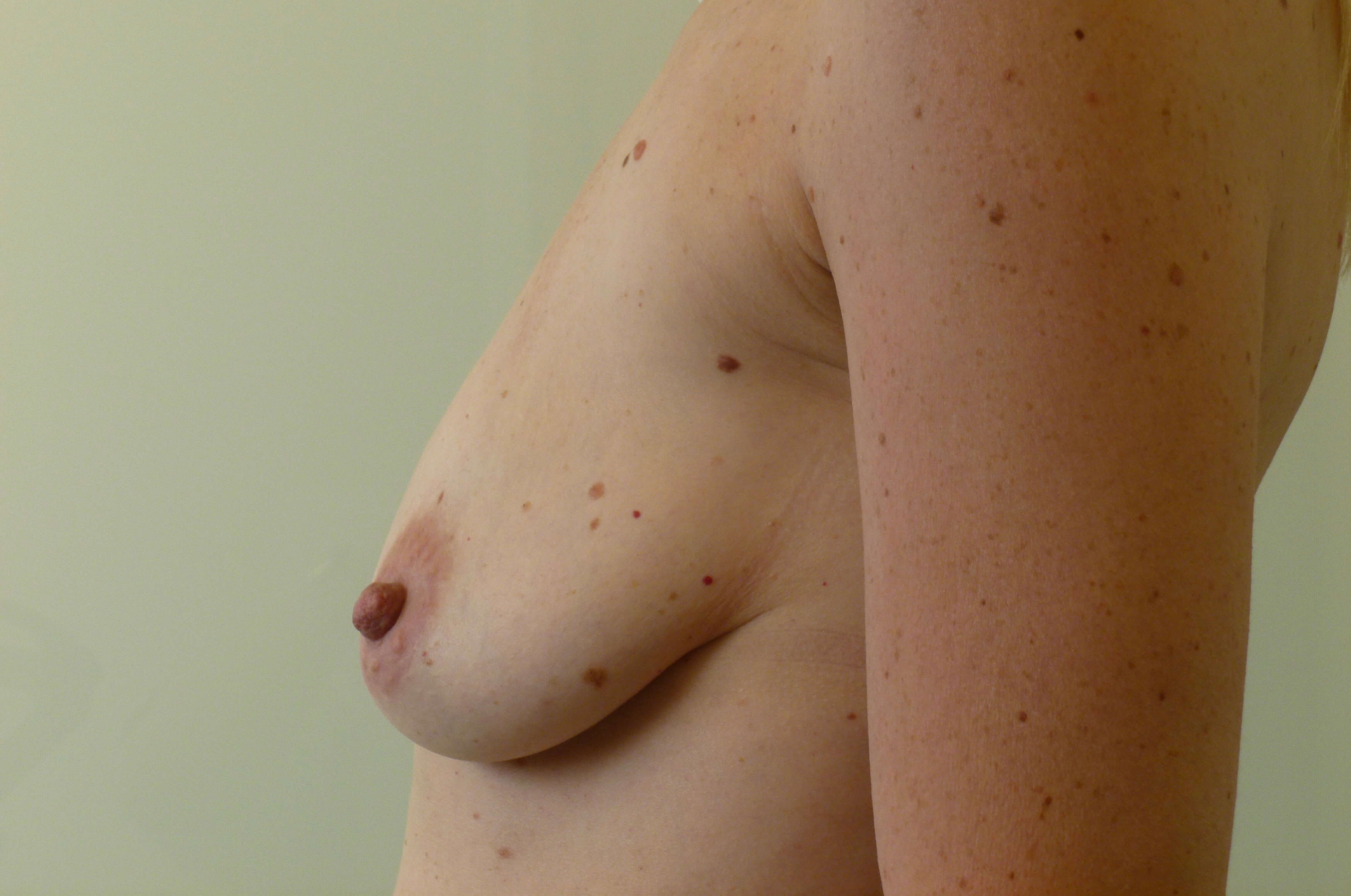 Vertical Lift, Left Side Before: Breast Ptosis