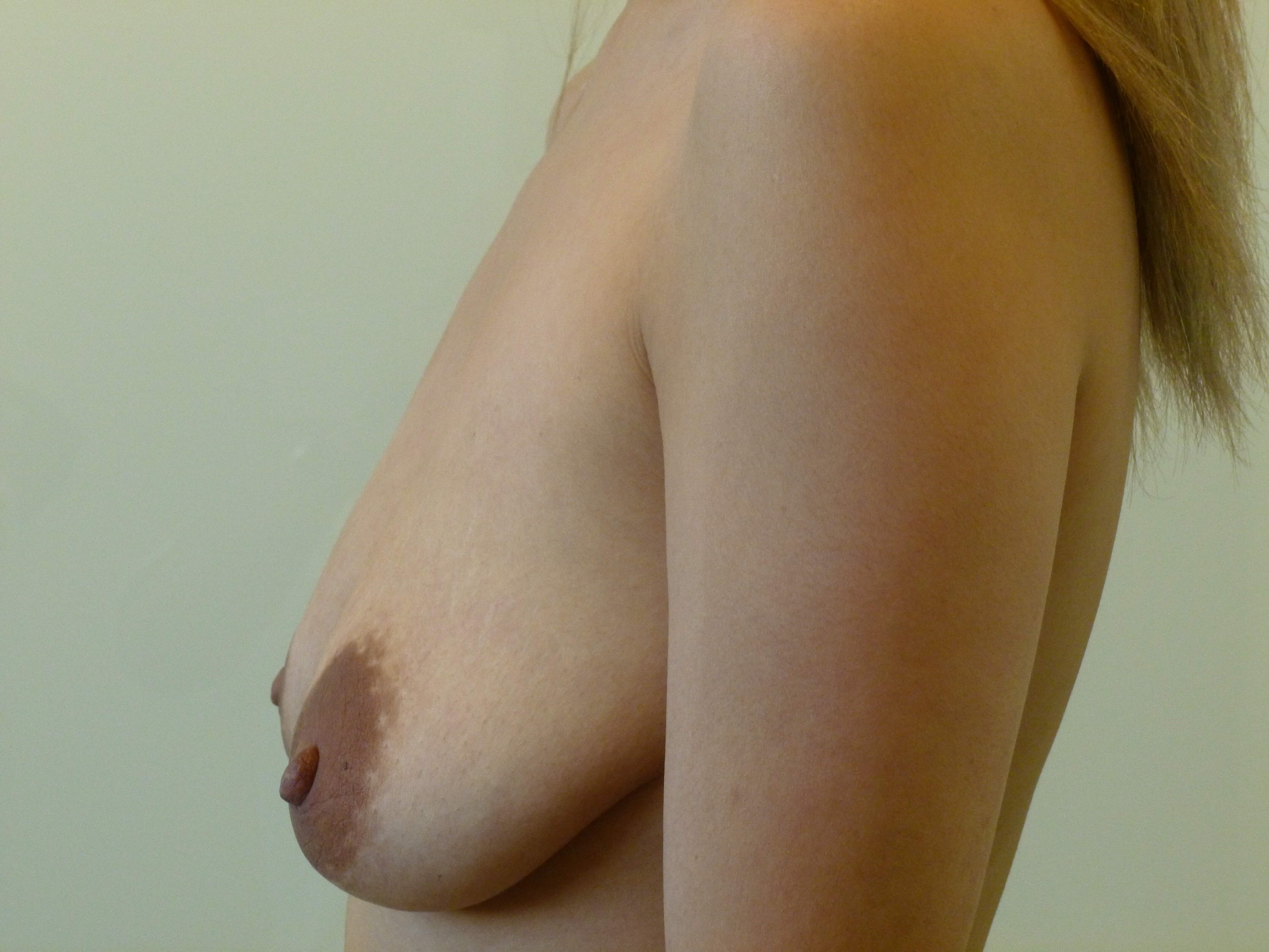 BA & Vertical Lift, Left Side Before: Breast Sagging