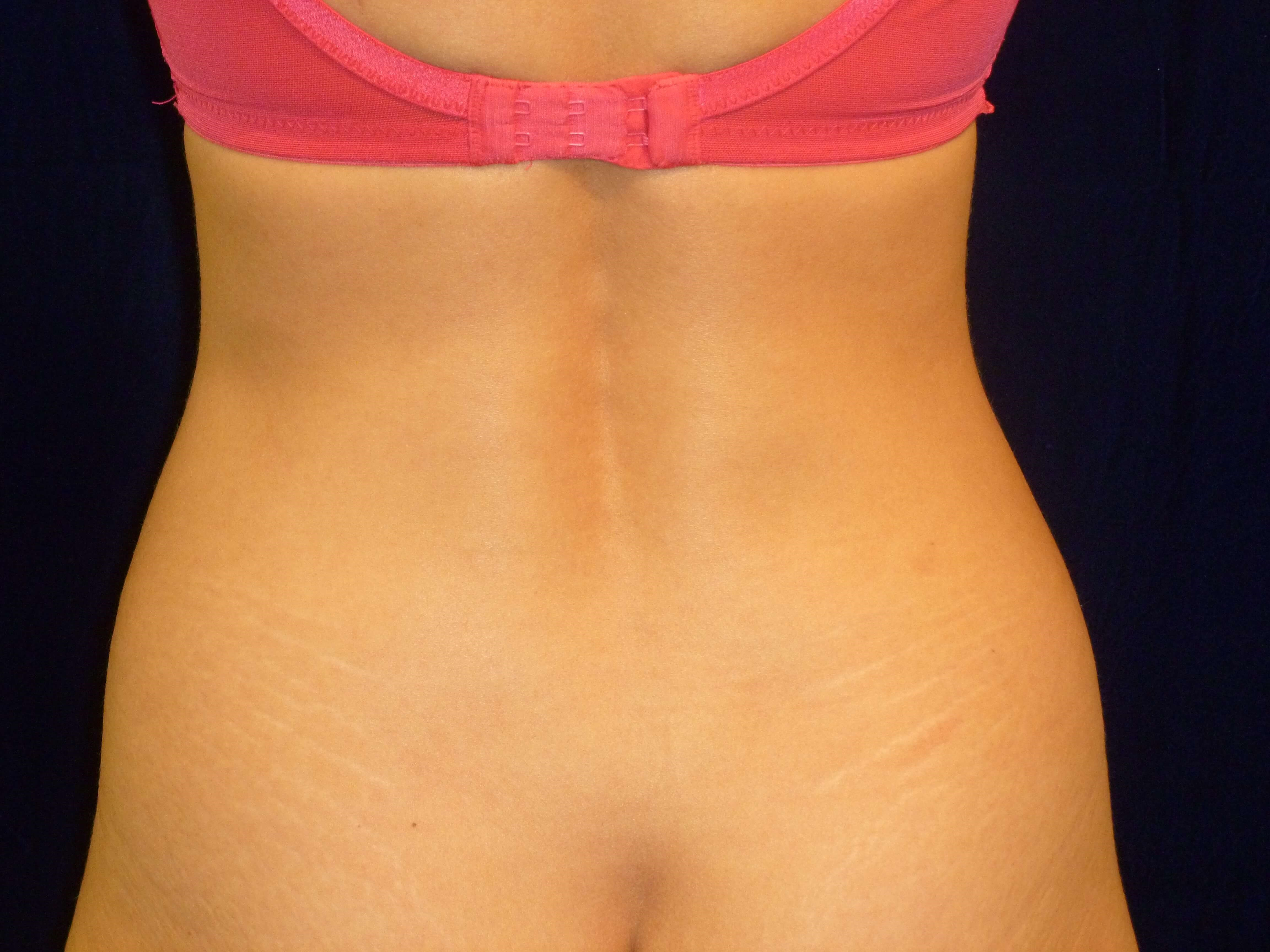 Liposuction Abdomen and Hips Before