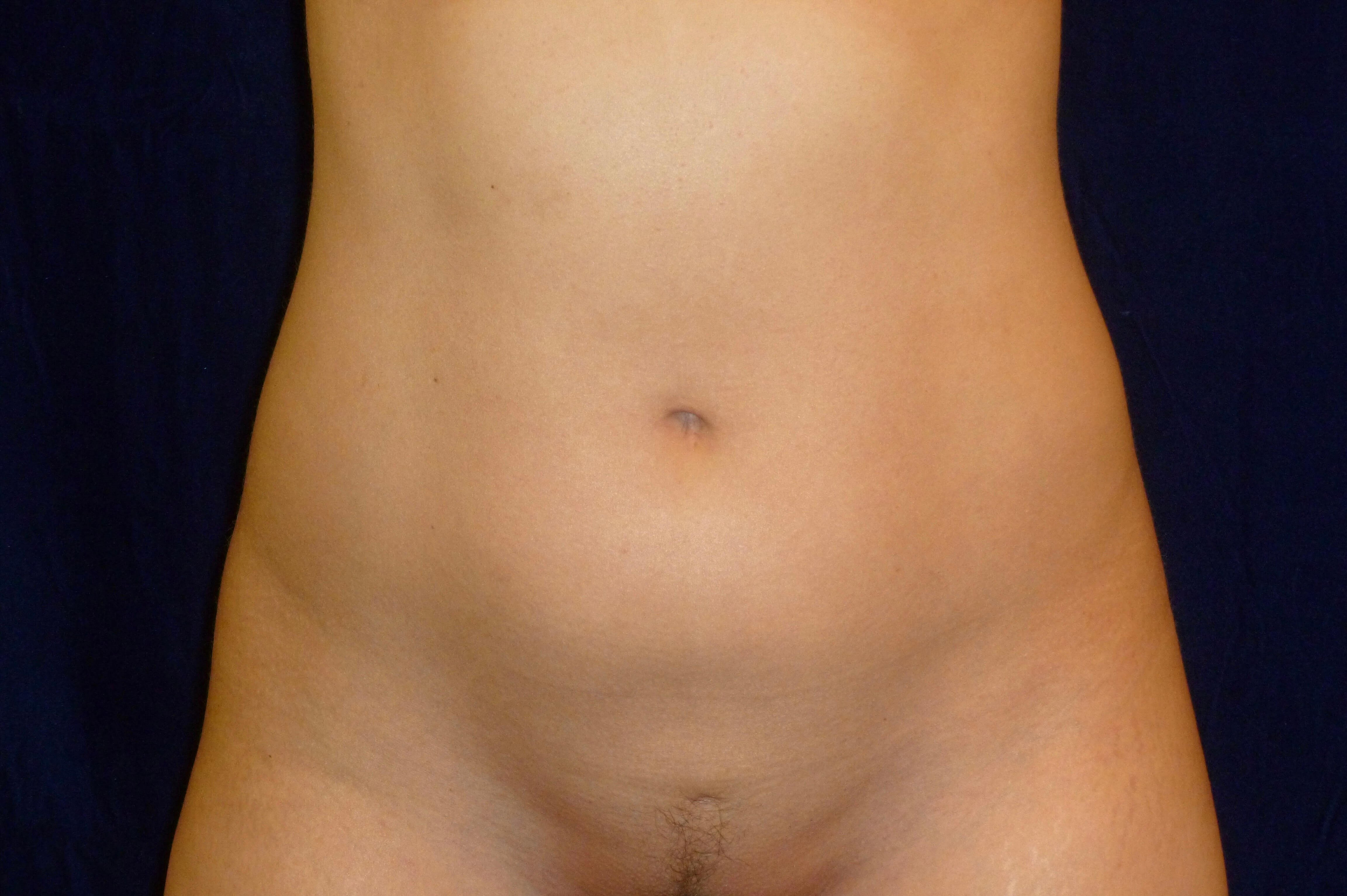 Liposuction Abdomen and Hips After