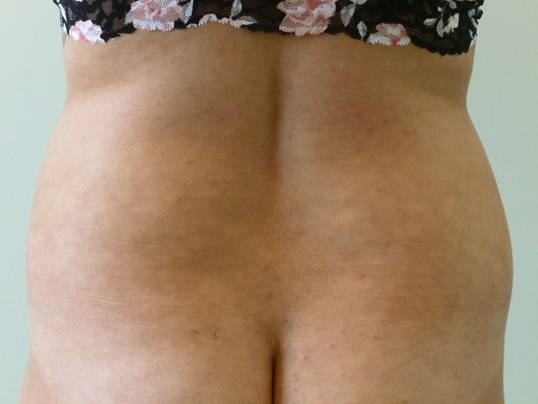 Liposuction Hips Before