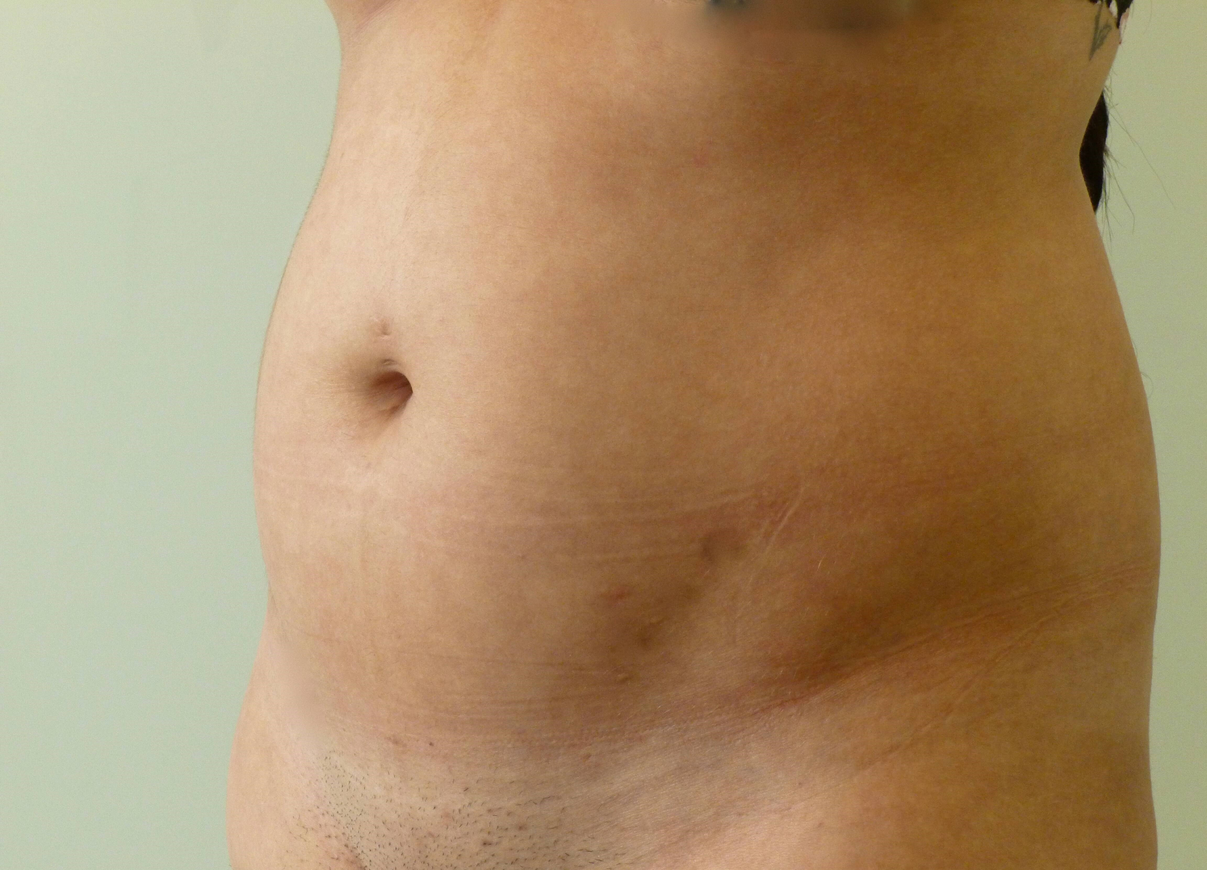 Liposuction of Abdomen & Hips Before